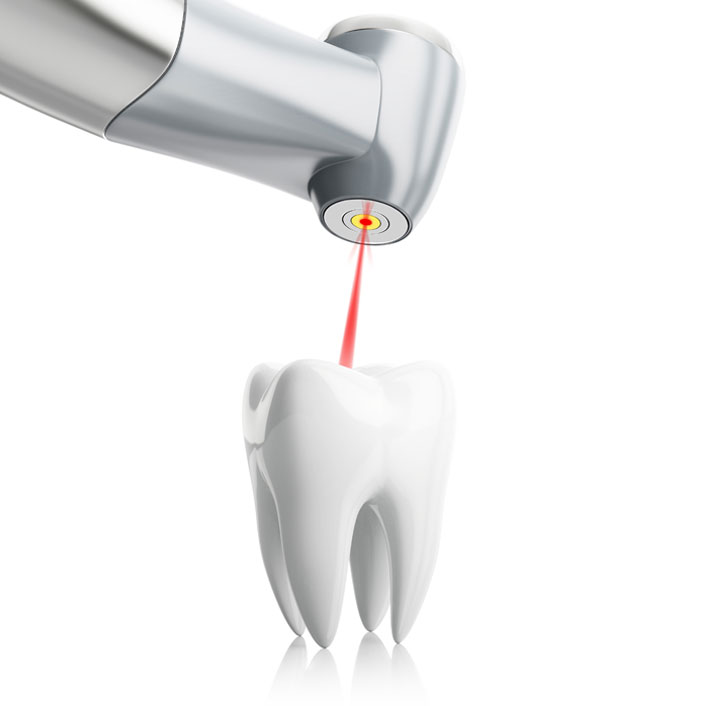 Laser Dentistry - Dental Technology